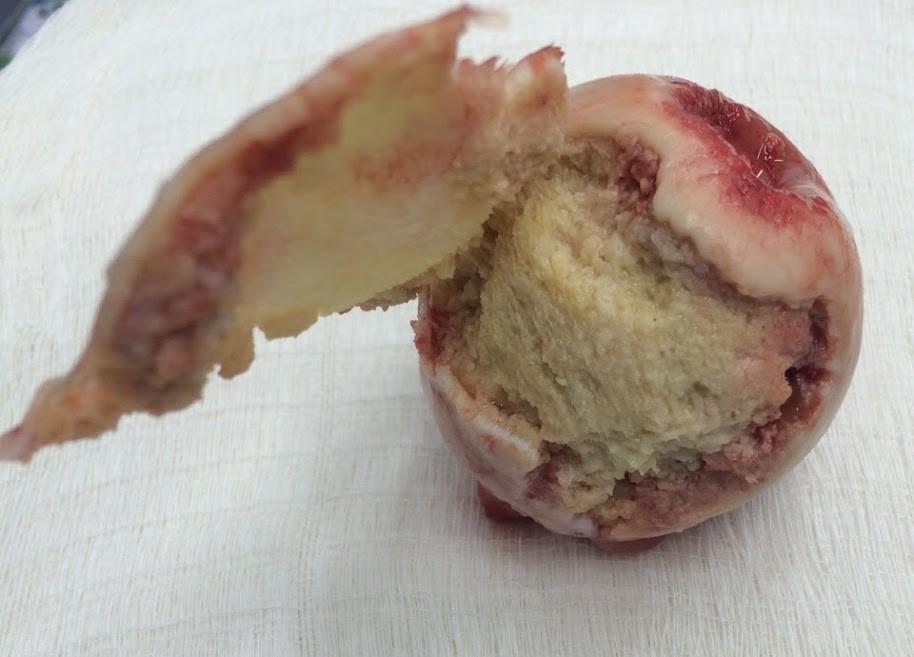OSTEONECROSE-2