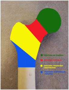 fratura-femur-proximal