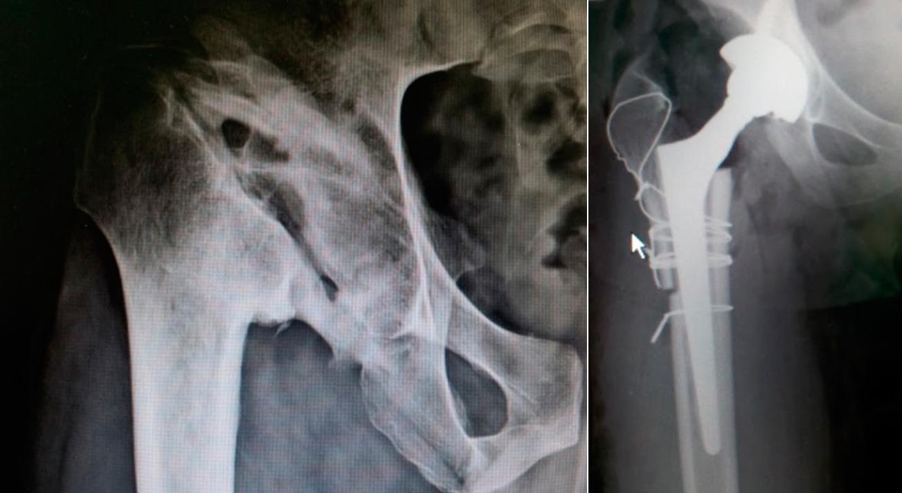 artrite-septica02