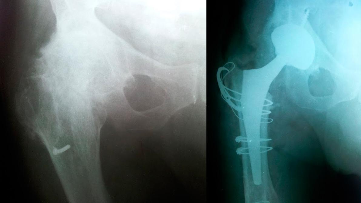 artrite-septica03