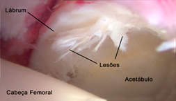 labral05