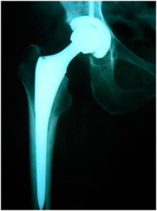 artroplastia04